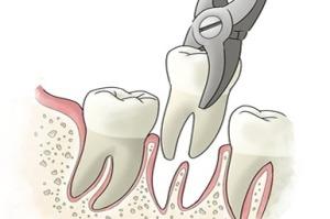 Foghúzás Dentálház
